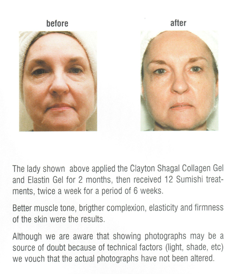 Before and after microcurrent facial treatment