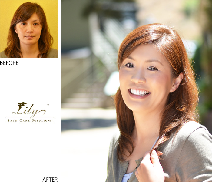 Anti-aging , micro current combination、Facial, Torrance, salon