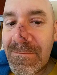 1 week afer operation / Clayton Shagal