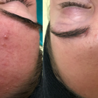 Acne before and after, effective sensitive skin treatment in Torrance, CA
