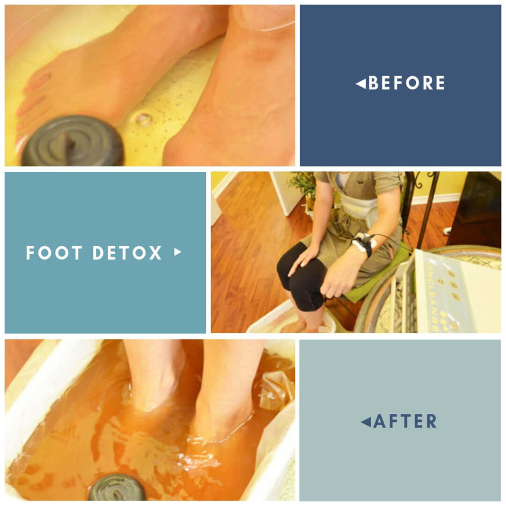 Foot detox in Torrance
